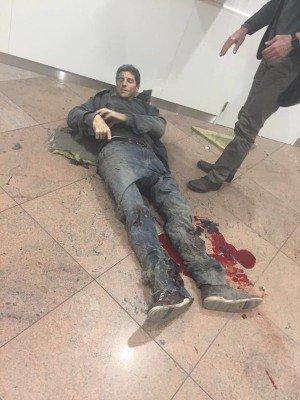 Серьезные ранения - belgium-terakt-5.jpg